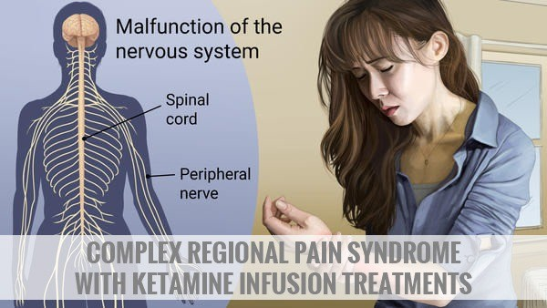 Complex Regional Pain Syndrome with Ketamine Infusion Treatments