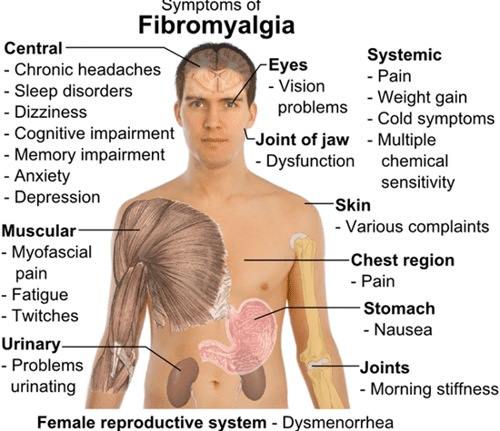 Treating_Fibro IV Ketamine Infusion Therapy to Help Manage the Pain of Fibromyalgia Los Angeles Southern California