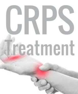 CRPS-treatment-ketamine-250x300 Ketamine IV Infusion Therapy Can Help With Complex Regional Pain Syndrome (CRPS) Los Angeles Southern California
