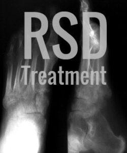Reflex-Distrofia simpática-RSD-Tratamiento-con-Ketamina-250x300 La terapia con ketamina IV puede ayudar con la Distrofia Simpática Refleja (RSD) Los Angeles Southern California
