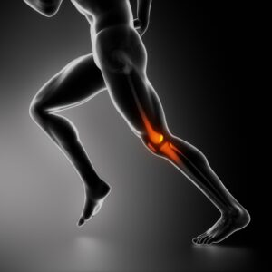 shutterstock_114105163-300x300 Ketamine may help to relieve osteoarthritis pain and inflammation Los Angeles Southern California